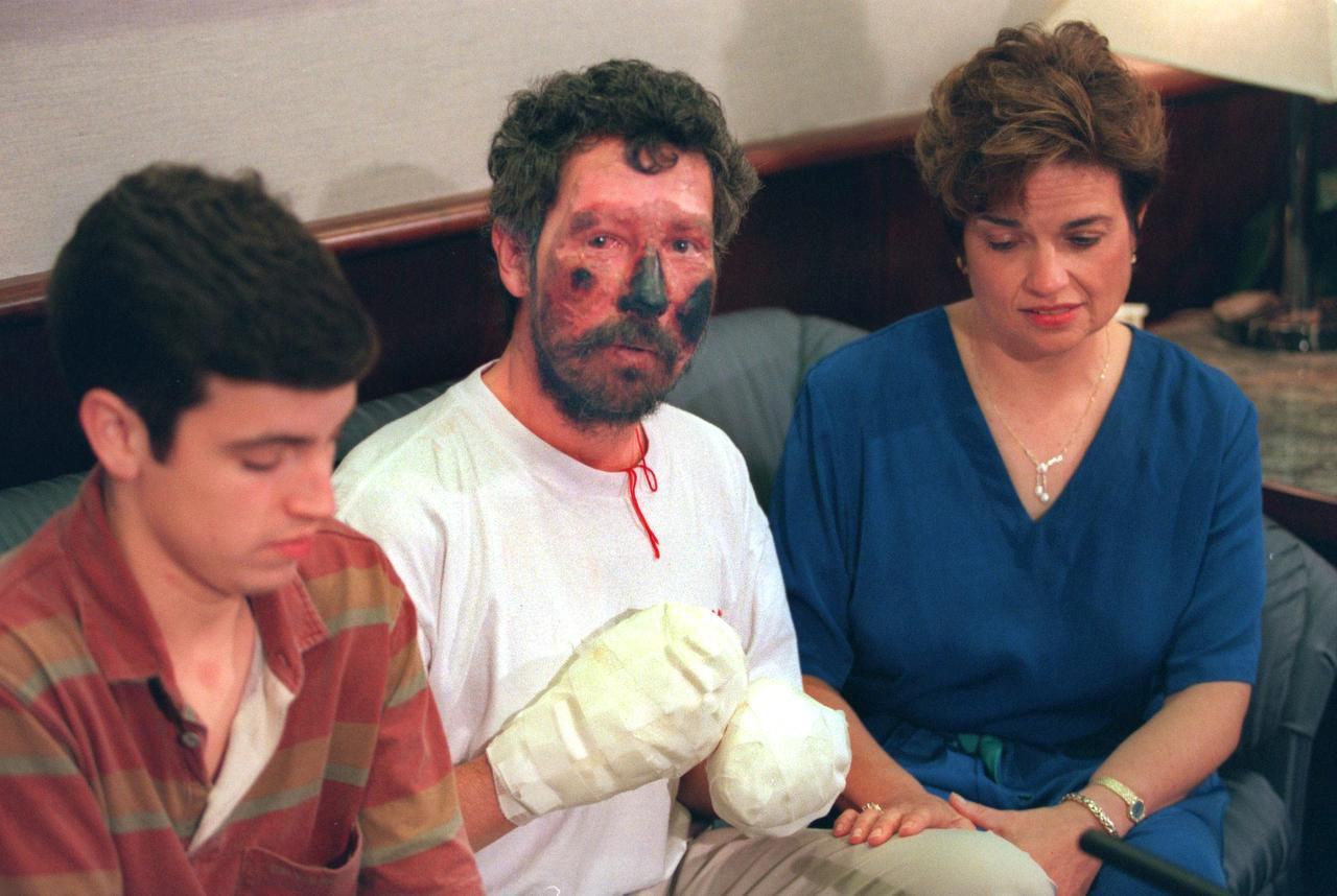 Beck Weathers was joined at a news conference upon his return from Everest to Dallas by his son, Beck, and his wife, Peach. He faced several operations to amputate his right hand, fashion a mitt from his left hand and create a new nose.