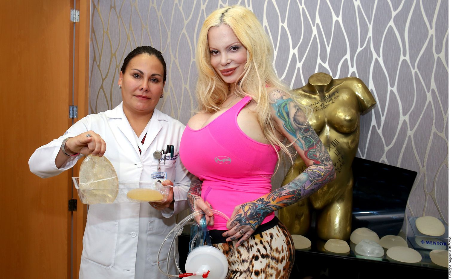 La cirujana dijo que la argentina podría tener secuelas luego de que le pusieran implantes usados en los gluteos./ AGENCIA REFORMA