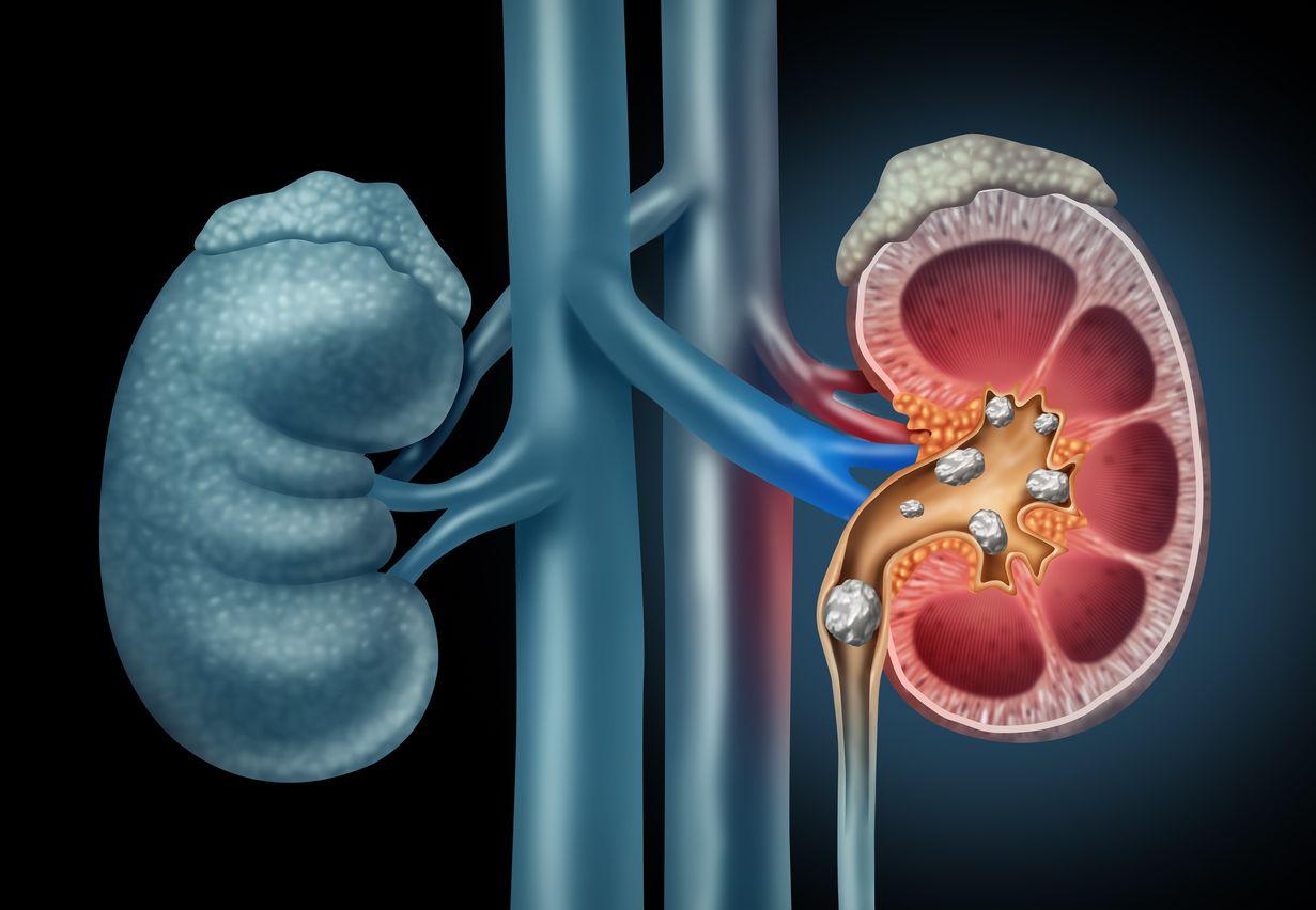 Actualmente los procedimientos de eliminación de los cálculos renales son mínimamente invasivos, los más comunes son uretroscopia y nefrolitotomía percutánea. iSTOCK