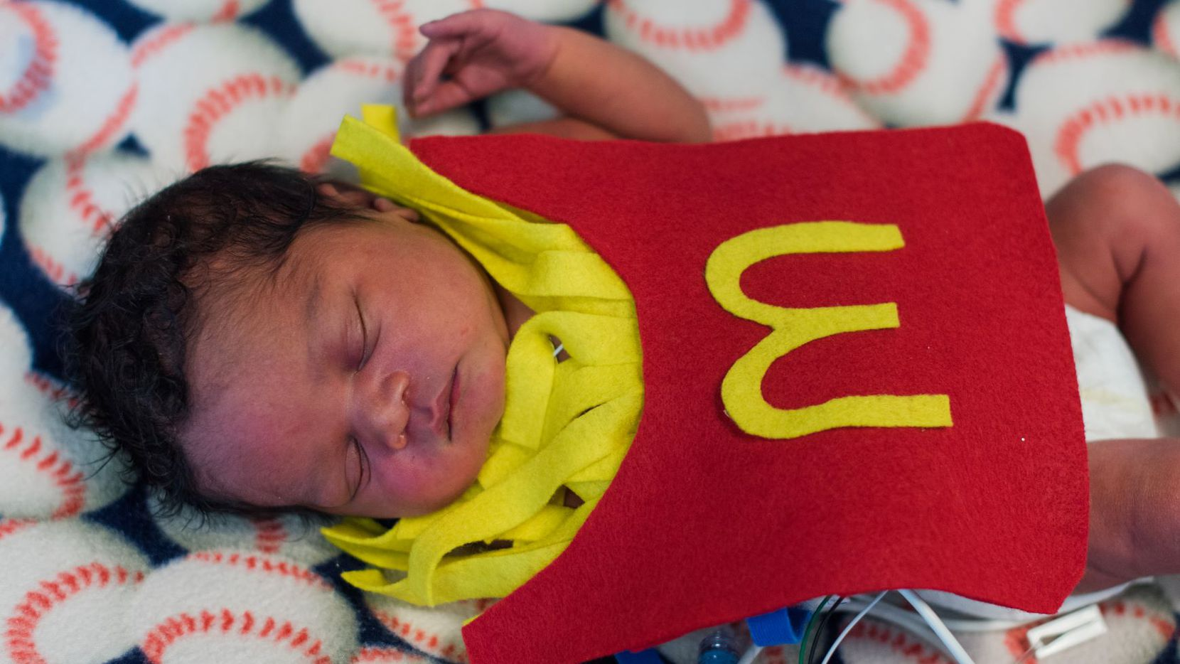 A baby in the NICU unit at Methodist Dallas in costume,  Nurses made felt costumes for the tiniest patients and one of the nurses, who is a professional photographer, took pictures so families would never forget their kiddo's first Halloween.