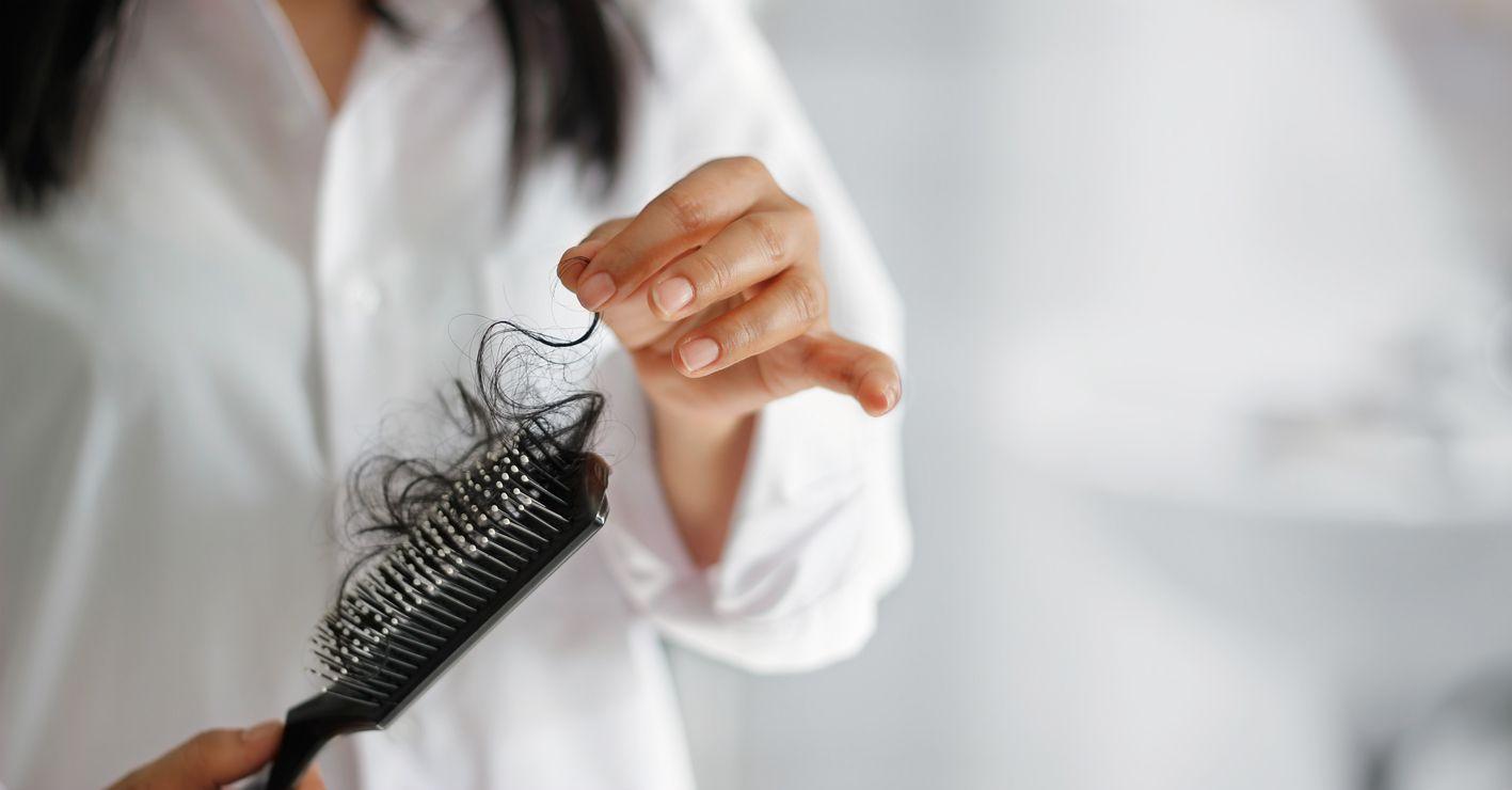 Existen muchos tipos de alopecias, por ejemplo, la androgenética, la areata, otras que suceden por hongos o enfermedades inmunológicas o simplemente cambios hormonales o dietas muy estrictas. (AGENCIA REFORMA)