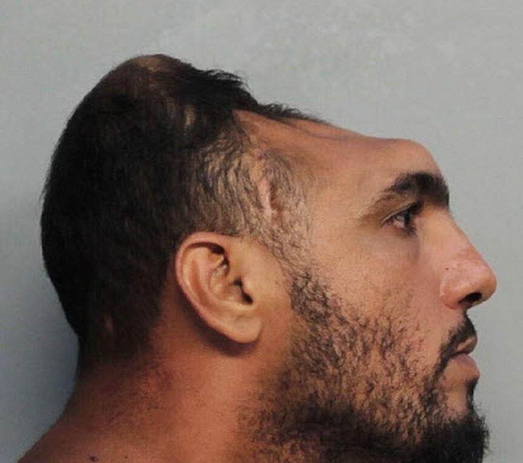 """Carlos """"Halfie"""" Rodríguez y su inusual cráneo. Esta foto se ha vuelto viral en internet. (AP/MIAMI-DADE CORRECTIONS AND REHABILITATION DEPARTMENT)"""