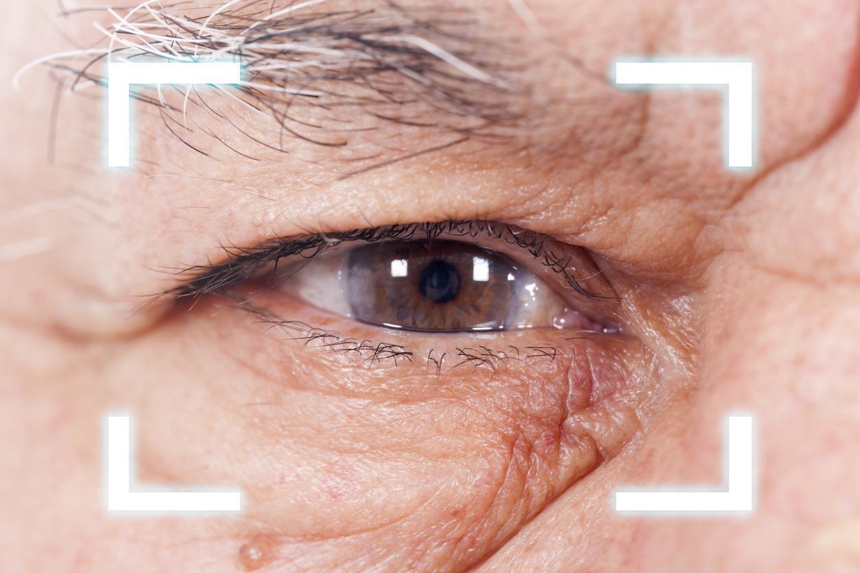 Una persona se somete a un exámen de la vista.(GETTY IMAGES)