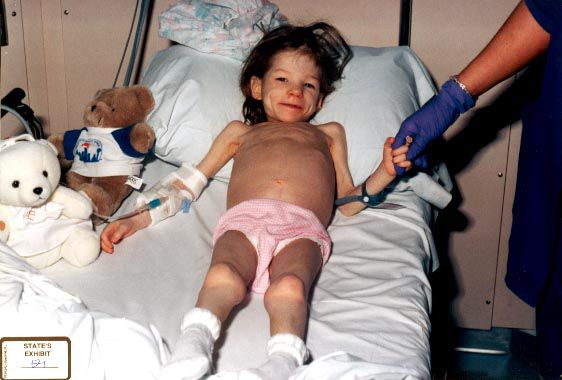 In a photo of Lauren taken at Children's Medical Center Dallas, she had the skeletal look of a Holocaust survivor.