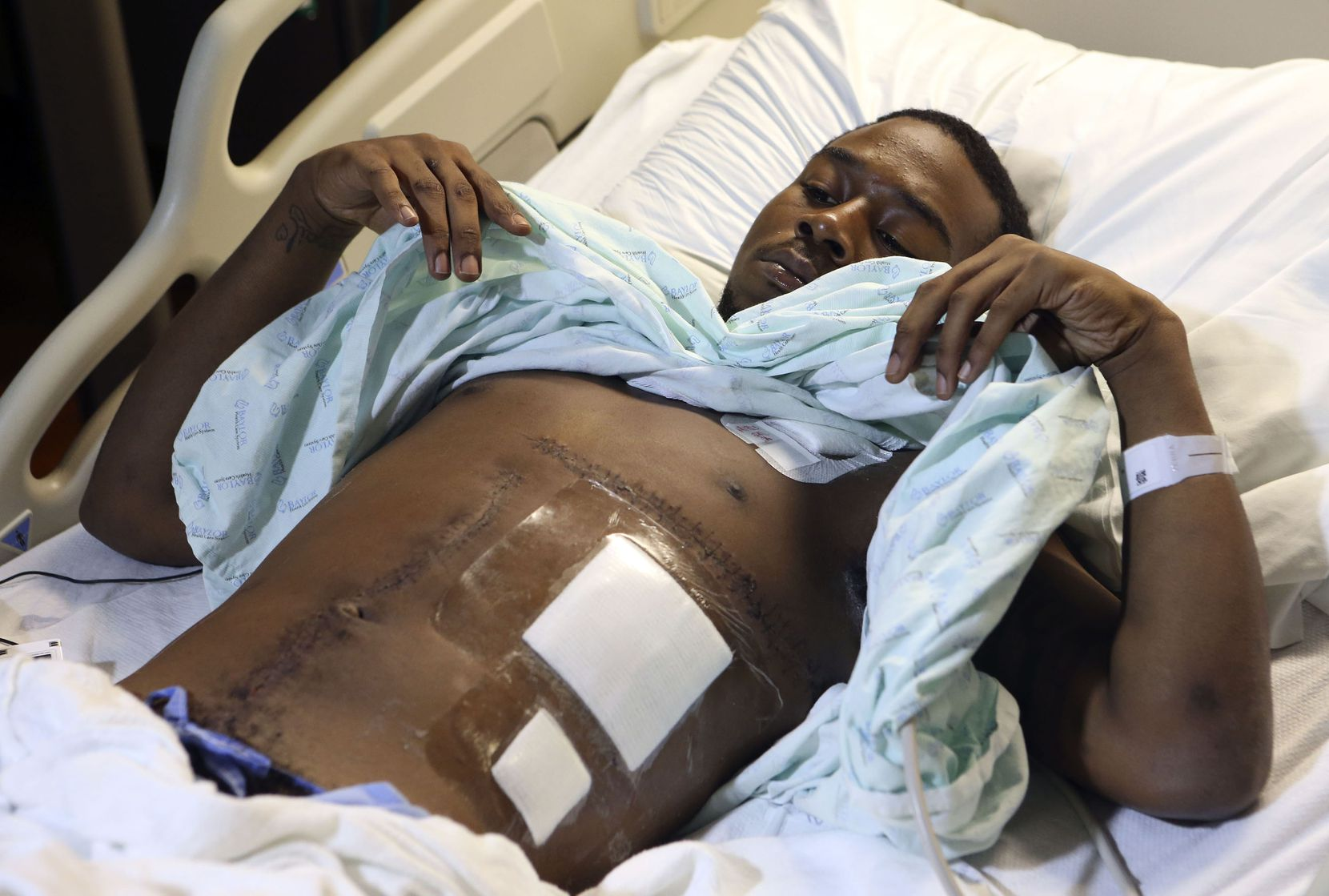 Kelvion Walker, 19,  shows his wounds from the surgery that saved his life after he was shot by Senior Cpl. Amy Wilburn in December 2013. An independent witness said the officer shot Walker even though he had both hands in the air and showed no signs of having a weapon.