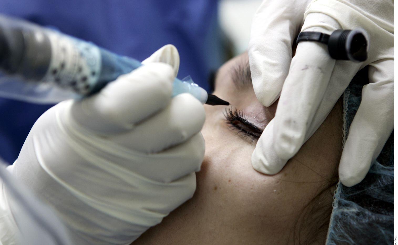 De acuerdo con el especialista en cirugía de extremidades inferiores, hay pacientes que desde los 30 años buscan una cirugía de párpados, o blefaroplastia, debido a comentarios de terceros sobre su aspecto cansado. AGENCIA REFORMA