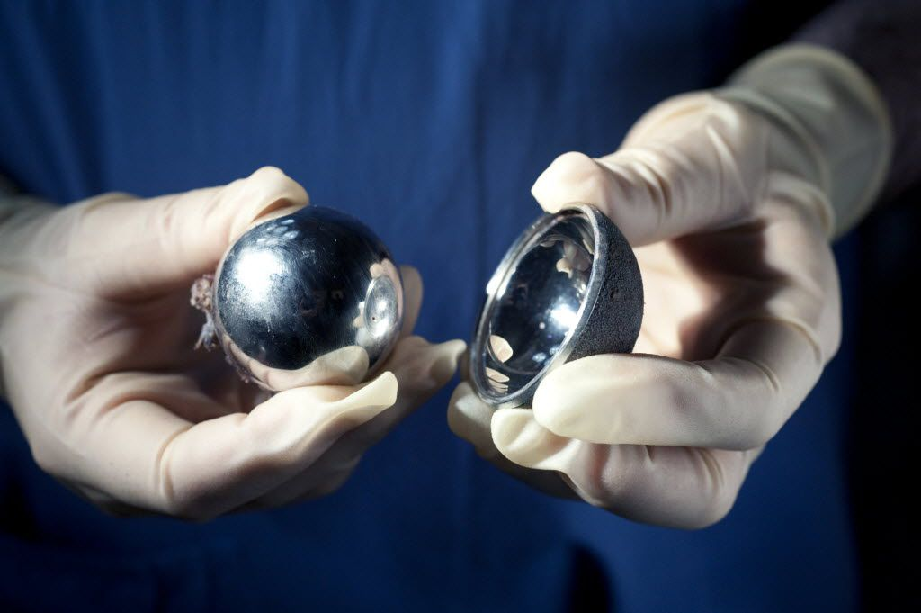 Dr. Antoni Nargol shows a failed hip implant, the Articular Surface Replacement, or ASR, made by DePuy, a subsidiary of Johnson & Johnson, that he removed from a patient, in Hartlepool, England, Sept. 24, 2010. DePuy issued a recall in August 2010 of both of its ASR hip systems (the DePuy ASR XL Acetabular System total hip replacement and ASR Hip Resurfacing System), citing a higher-than-normal failure rate of the devices. A similar system called the Pinnacle Hip Replacement System (not pictured), was discontinued. (Andrew Testa/The New York Times)
