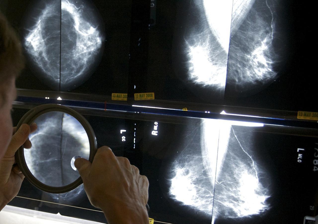 Un radiólogo checa los resultados de mamografías en Los Ángeles. (AP/DAMIAN DOVARGANES)