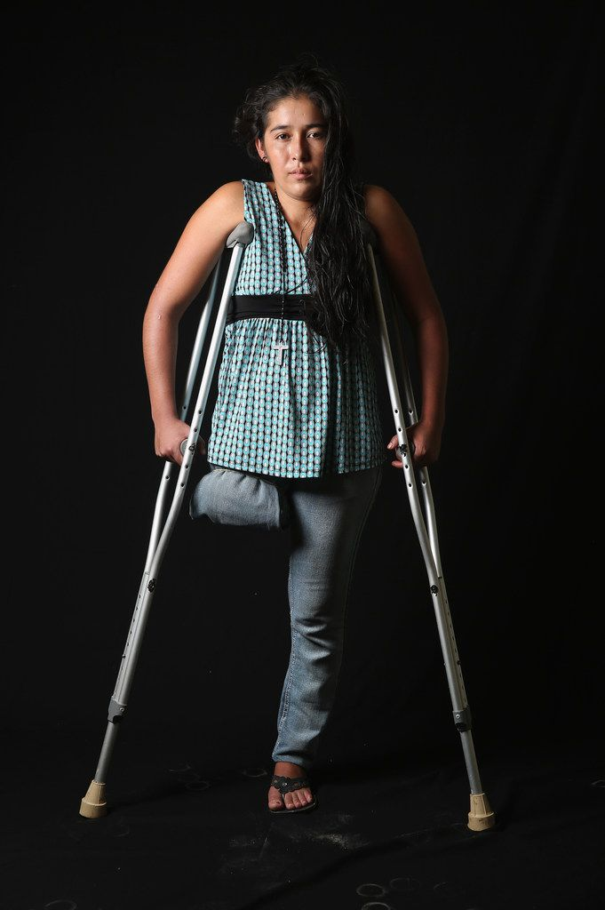 Undocumented Guatemalan immigrant Elvira Lopez, 22, stands on crutches at the Jesus el Buen Pastor shelter on July 31, 2013 in Tapachula, Mexico. She fell under the wheels of a freight train and lost her right leg while on route to the United States.  The image appears in Undocumented: Immigration and the Militarization of the United States-Mexico Border.
