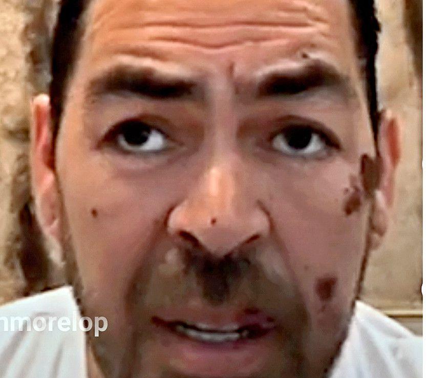 A través de redes sociales, Jorge D'Alessio relató que fue víctima de un ataque./ AGENCIA REFORMA