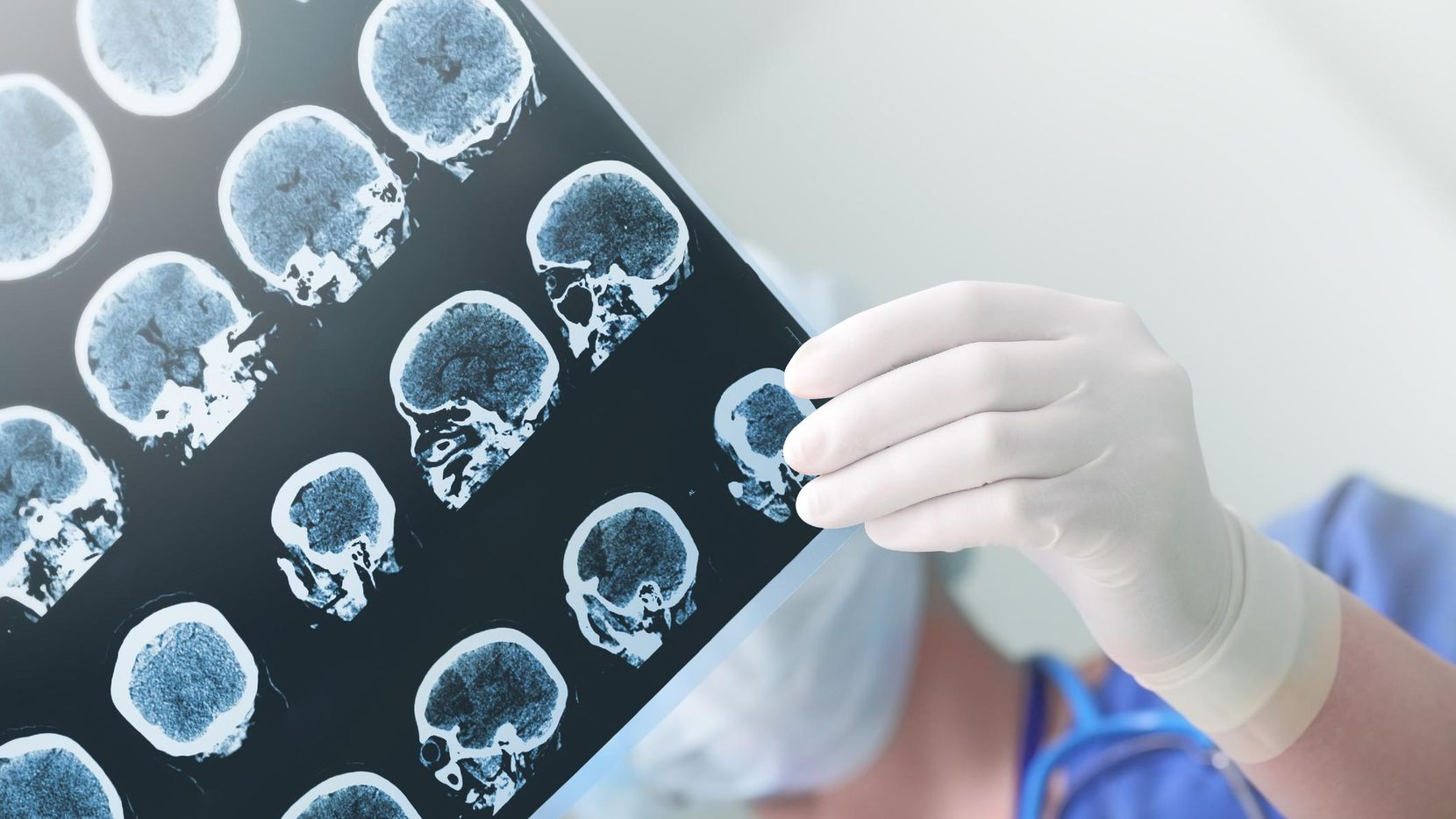 Un médico revisa una placa del cerebro de un paciente.(iStock)