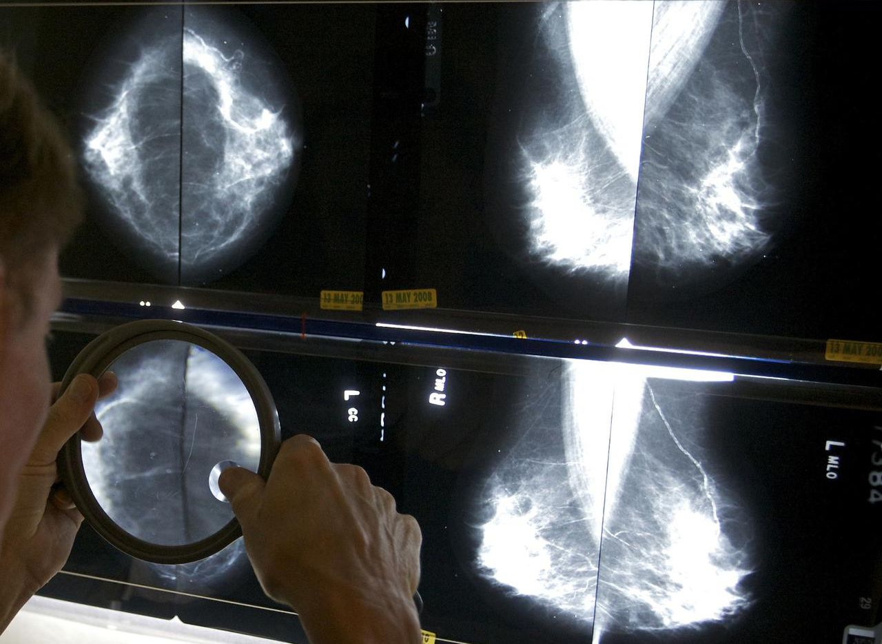 Según el Equipo de Trabajo de Servicios Preventivos, las mujeres deben hacerse una mamografía cada dos años entre los 50 y 74 años (AP/DAMIAN DOVARGANTES)