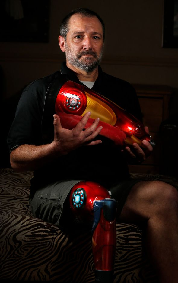 Michael Orlie poses for a photograph with his custom-painted prosthetic leg at his home on Tuesday, March 21, 2017, in Arlington, Texas. He lost his leg to cancer when he was 27, and now has a prosthetic limb and pays more than $1800 per month for the health insurance. (Jae S. Lee/The Dallas Morning News)