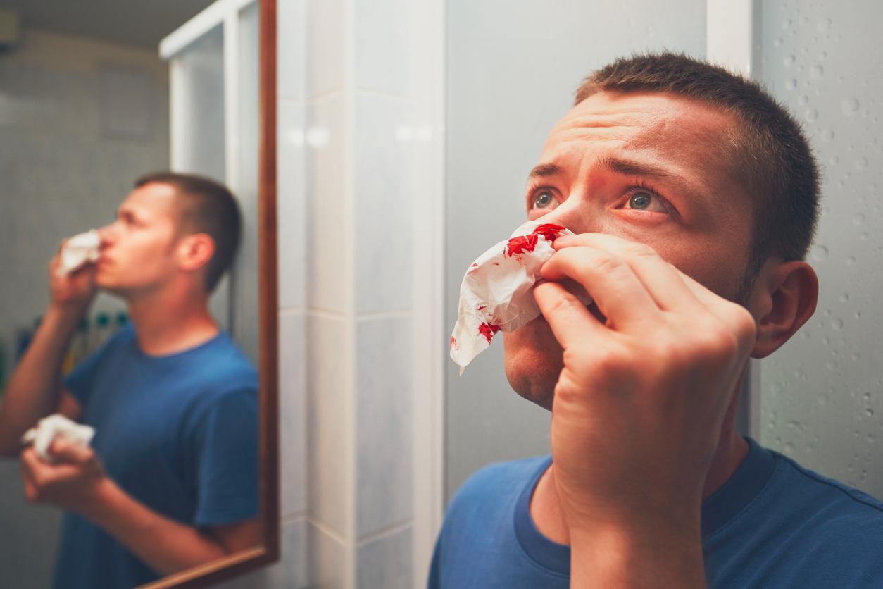 Una persona se toponea una fosa nasal para evirar sangrado por la nariz.(getty images)