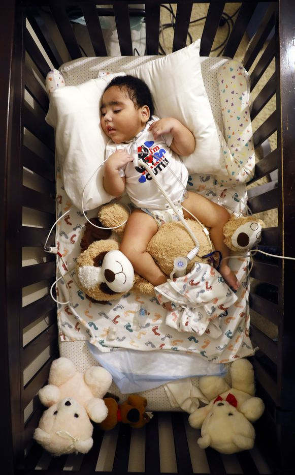 D'ashon rests in his crib as he receives his breakfast through a feeding tube.