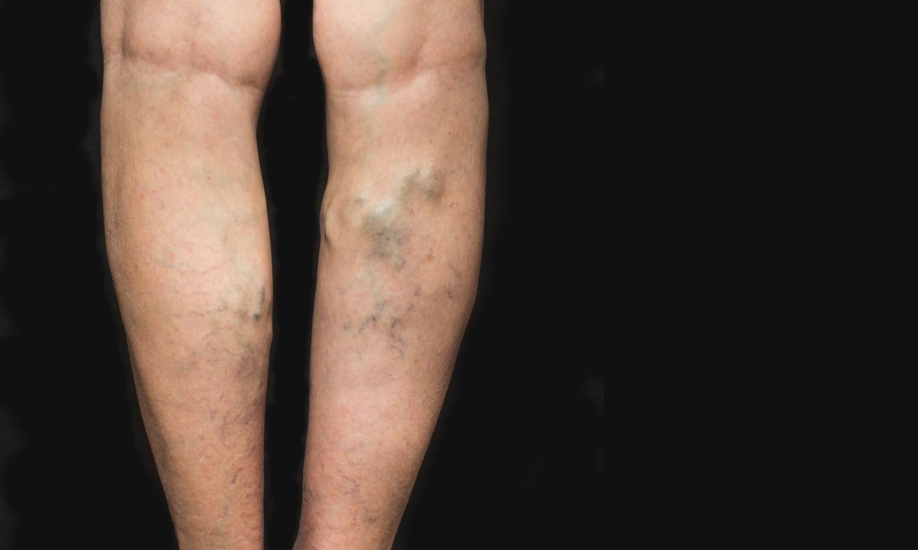 Una persona que sufre de flebitis en sus piernas.(GETTY IMAGES)