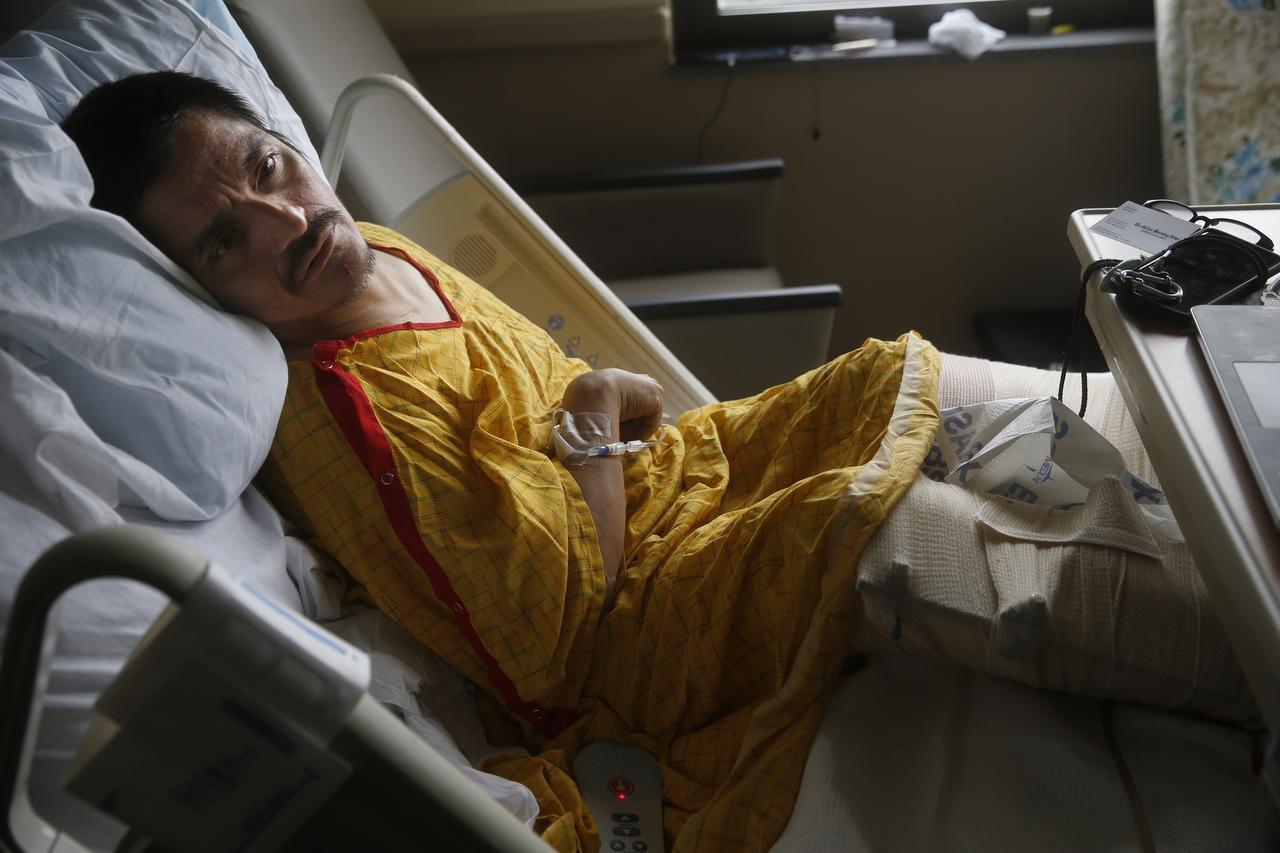 Joey Salas, de 42 años, fue atropellado en Oak Cliff a principios de enero. Los médicos no pudieron salvar una de sus piernas luego del accidente. (DMN/NATHAN HUNSINGER)