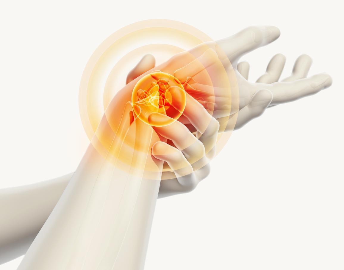 La inflamación de tendones en el tunel carpiano causa hormigueo, dolor y pérdida de sensación en la palma de la mano y dedos.(Getty Images)