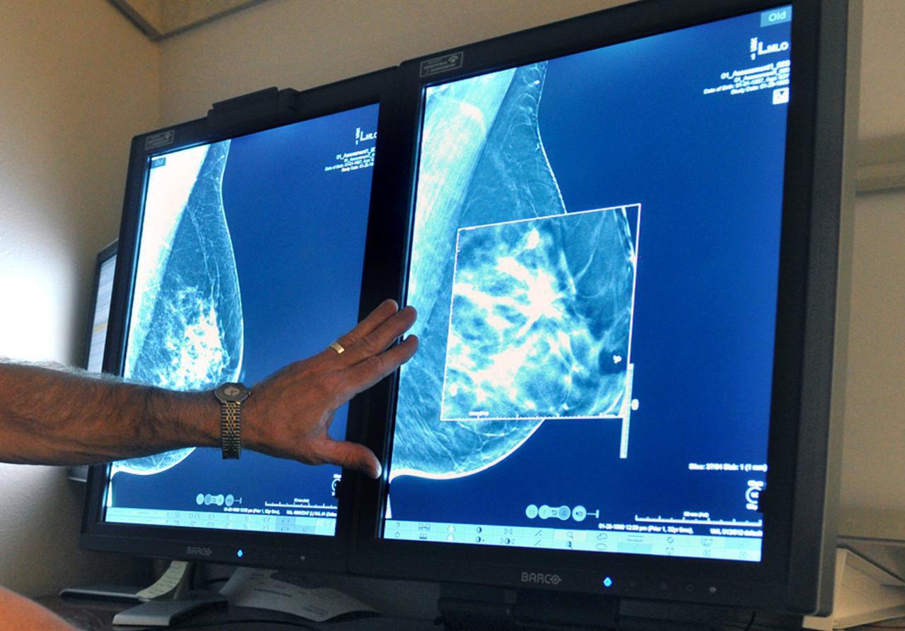 Un radiólogo compara tomas de mamografías. Un estudio reveló que el cáncer en su etapa temprana es más peligroso para mujeres jóvenes y afroamericanas. (AP/TORIN HALSEY)
