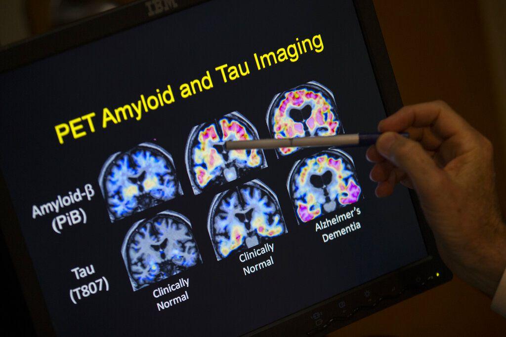 El doctor R. Scott Turner, profesor de neurología y director del Centro de Trastornos de la Memoria del Hospital de la Universidad de Georgetown, muestra los resultados de un examen PET del cerebro en Washington el 19 de mayo del 2015. (AP Photo/Evan Vucci, File)
