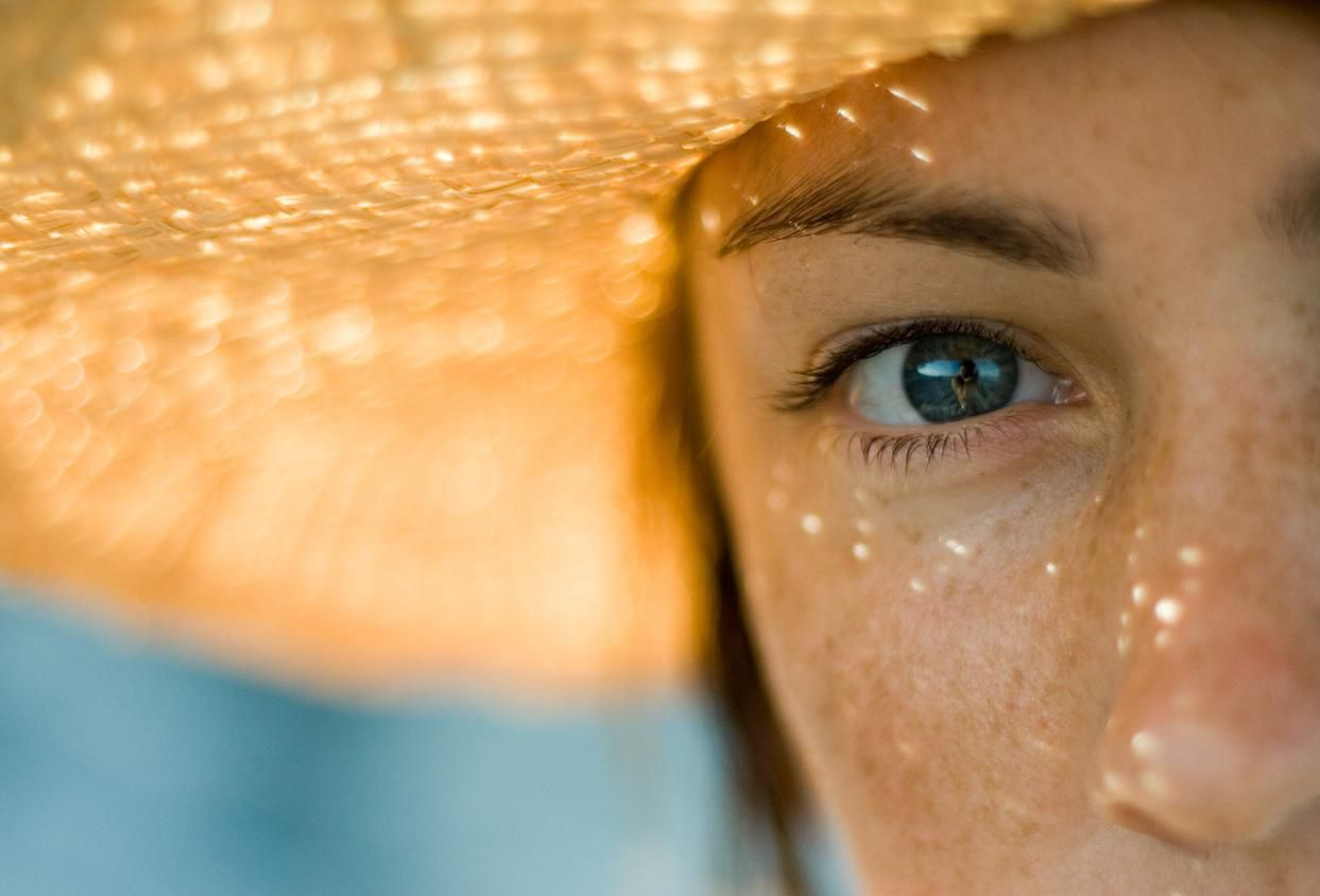 Una mujer con pecas se cubre del sol en su rostro.(GETTY IMAGES)