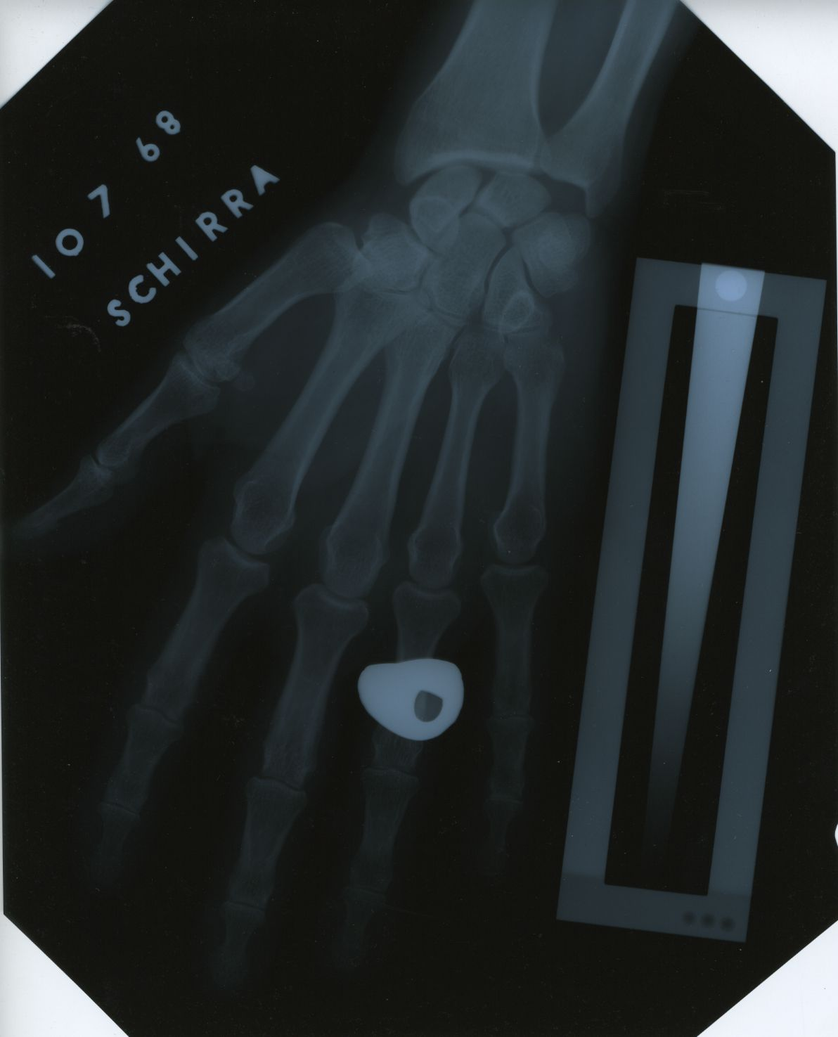 "Walter ""Wally"" Schirra, commander of the Apollo 7 mission that launched in October 1968, participated in the NASA bone density research study led by Pauline Beery Mack. This X-ray of Schirra's hand is one of several housed in TWU's Blagg-Huey Library in Denton."