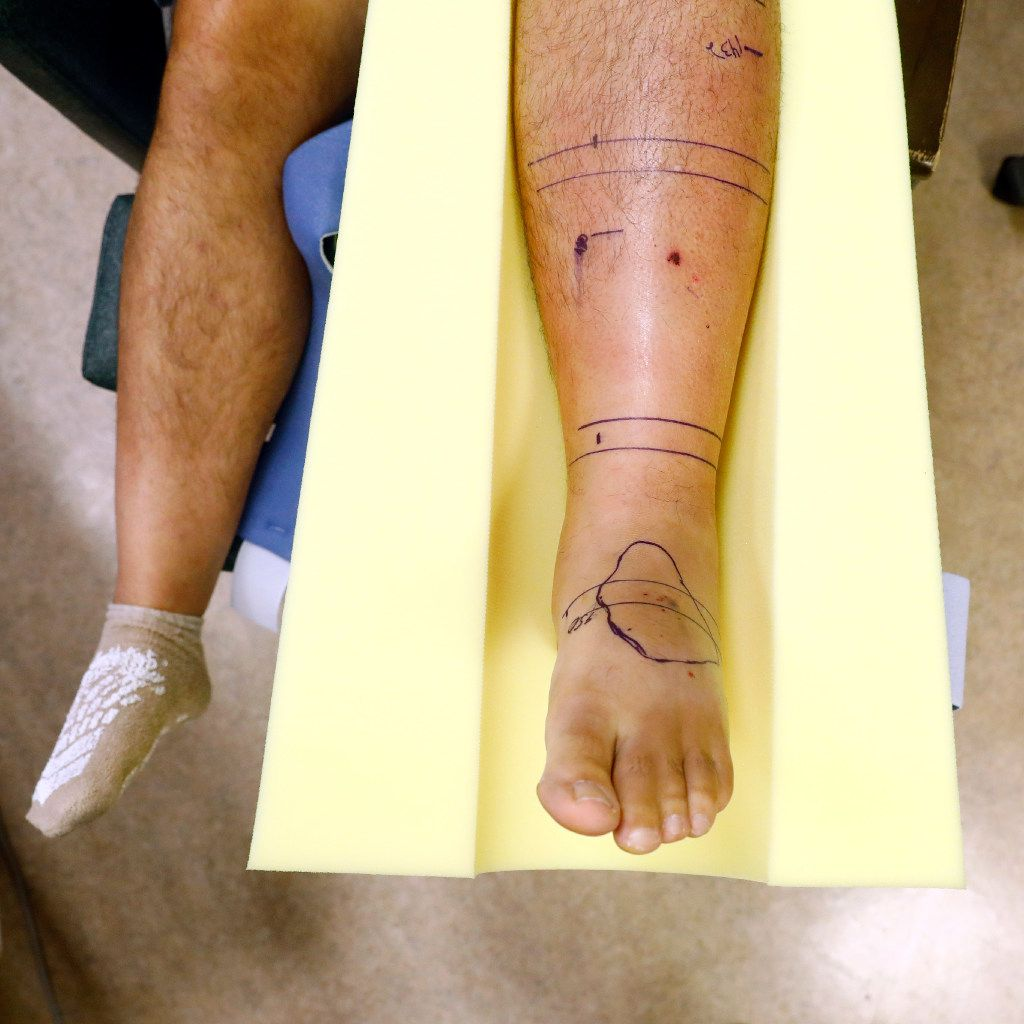 Markings indicate Copperhead snake bites and the affected area for each on the leg of Steve Glassanger of Weatherford. Glassanger is recovering at Texas Health Harris Methodist Fort Worth after sustaining four bites from a pair of venomous snakes outside his home Wednesday.