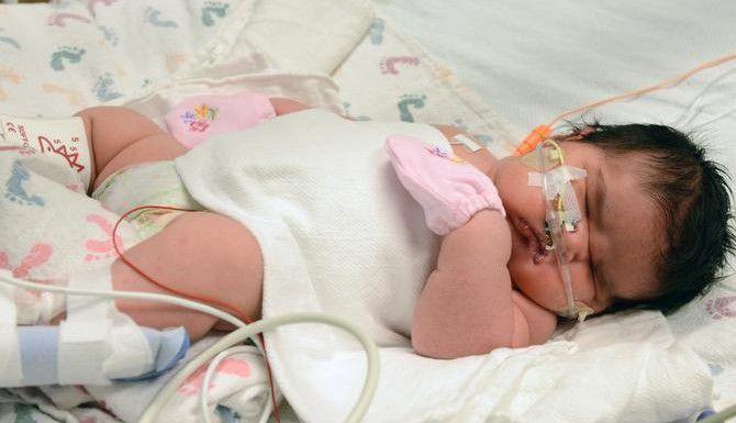 Mia Yasmín García pesó 13 libras, 13 onzas al nacer en Alamosa, Colorado. Su madre esperaba en bebé de siete libras. (AP/TIA BRAYMAN)