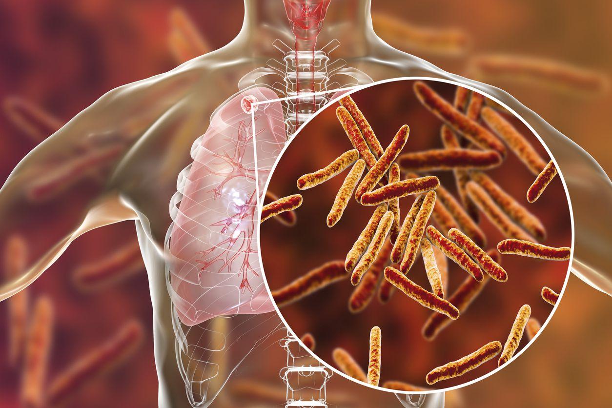 La Mycobacterium afecta más frecuentemente al pulmón, aunque puede afectar diferentes órganos del cuerpo. iSTOCK