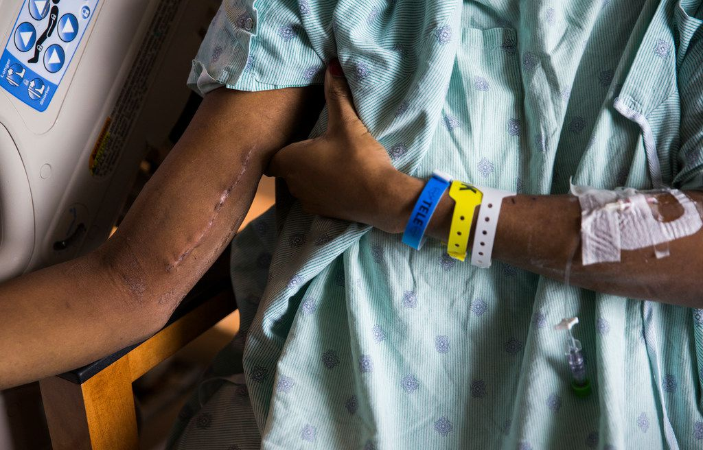 Daniela Calderon shows scars on her right arm from surgery in her North Texas hospital room on Thursday, October 3, 2019. Calderon, a transgender woman, was shot several times at a bus stop on September 20, 2019.