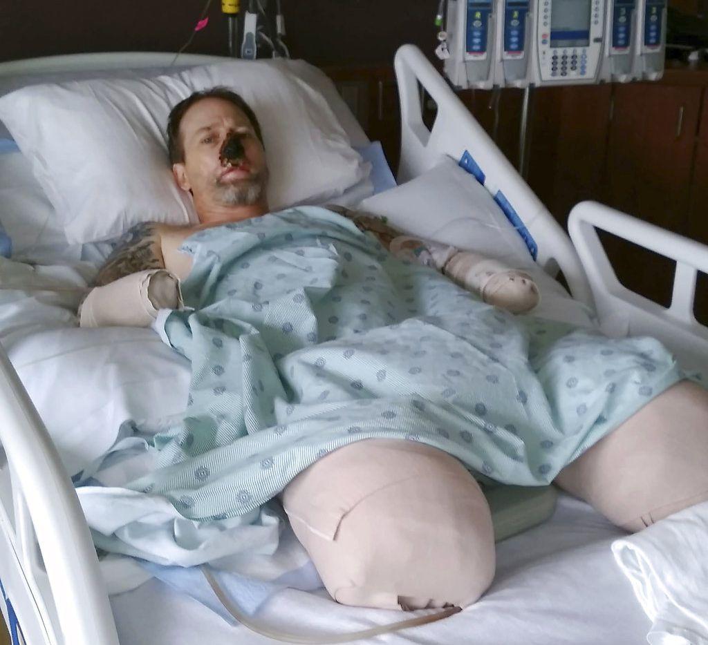 En esta fotografía del 2 de agosto de 2018 proporcionada por Dawn Manteufel, se muestra a su esposo Greg en la cama del Hospital Froedtert en Milwaukee, Wisconsin. Los cirujanos tuvieron que amputarle parte de las piernas y de los antebrazos debido a que contrajo una inusual infección en la sangre luego de que un perro lo lamió. (Dawn Manteufel vía AP)