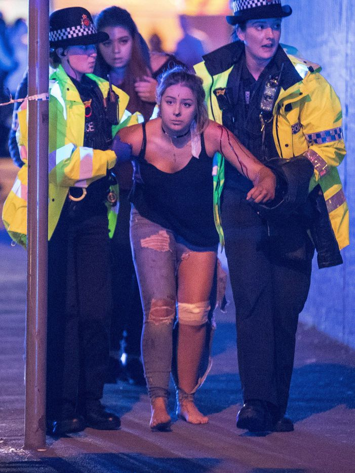 An injured concertgoer is helped by police and emergency responders on Monday after the explosion outside Manchester Arena.