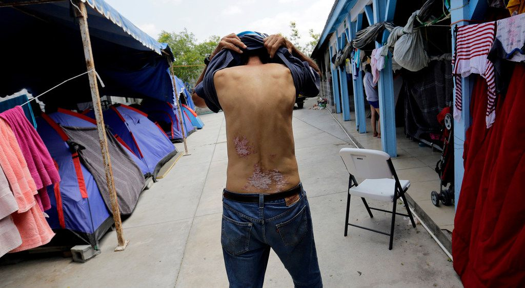 In this May 1, 2019, photo, Jose Alfredo Diaz Reyes, 60, of Honduras, shows scarring on his lower back in Reynosa, Mexico -- the result, he says, of an attack by suspected gang members in his native country. He was at the Senda de Vida shelter waiting with more than 300 people to enter the United States. In Reynosa, human traffickers are known to kidnap and extort migrants.