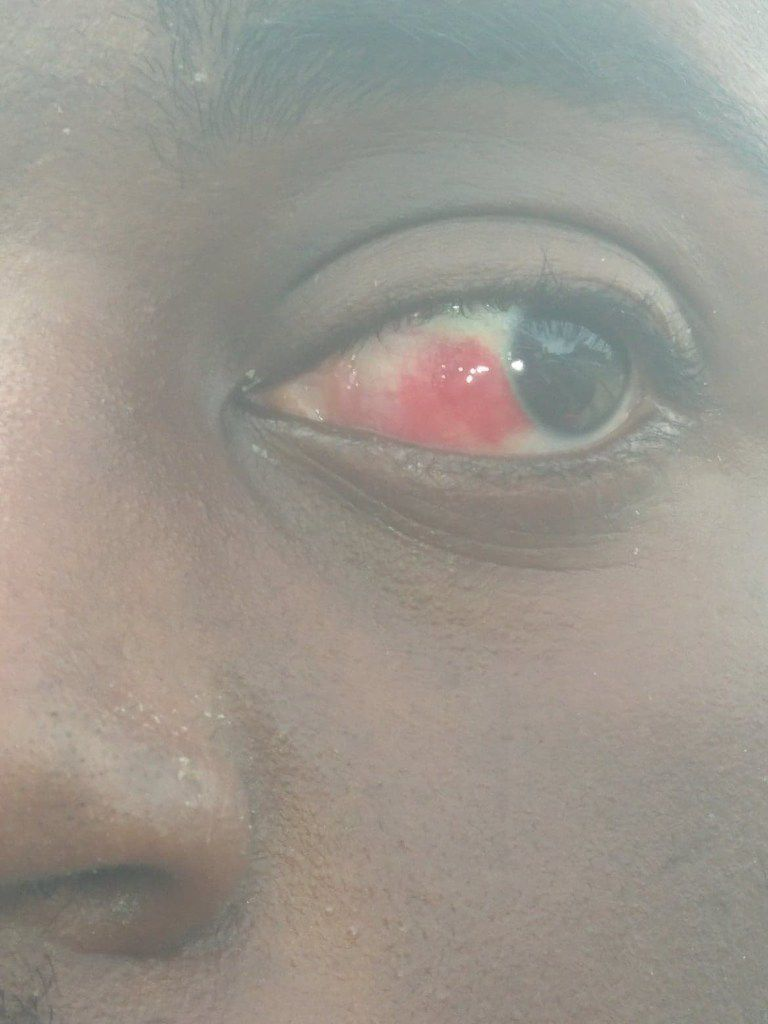 Grant Bible's eye after he was Tased and arrested by DeSoto police officers.