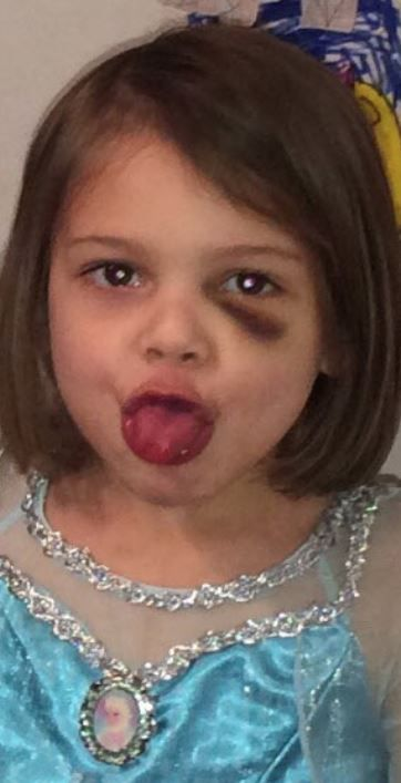 Leiliana Wright had a black eye in a photo taken two months before her death.