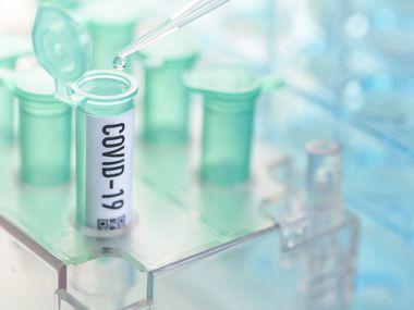 Muestras del coronavirus covid-19 en un laboratorio.
