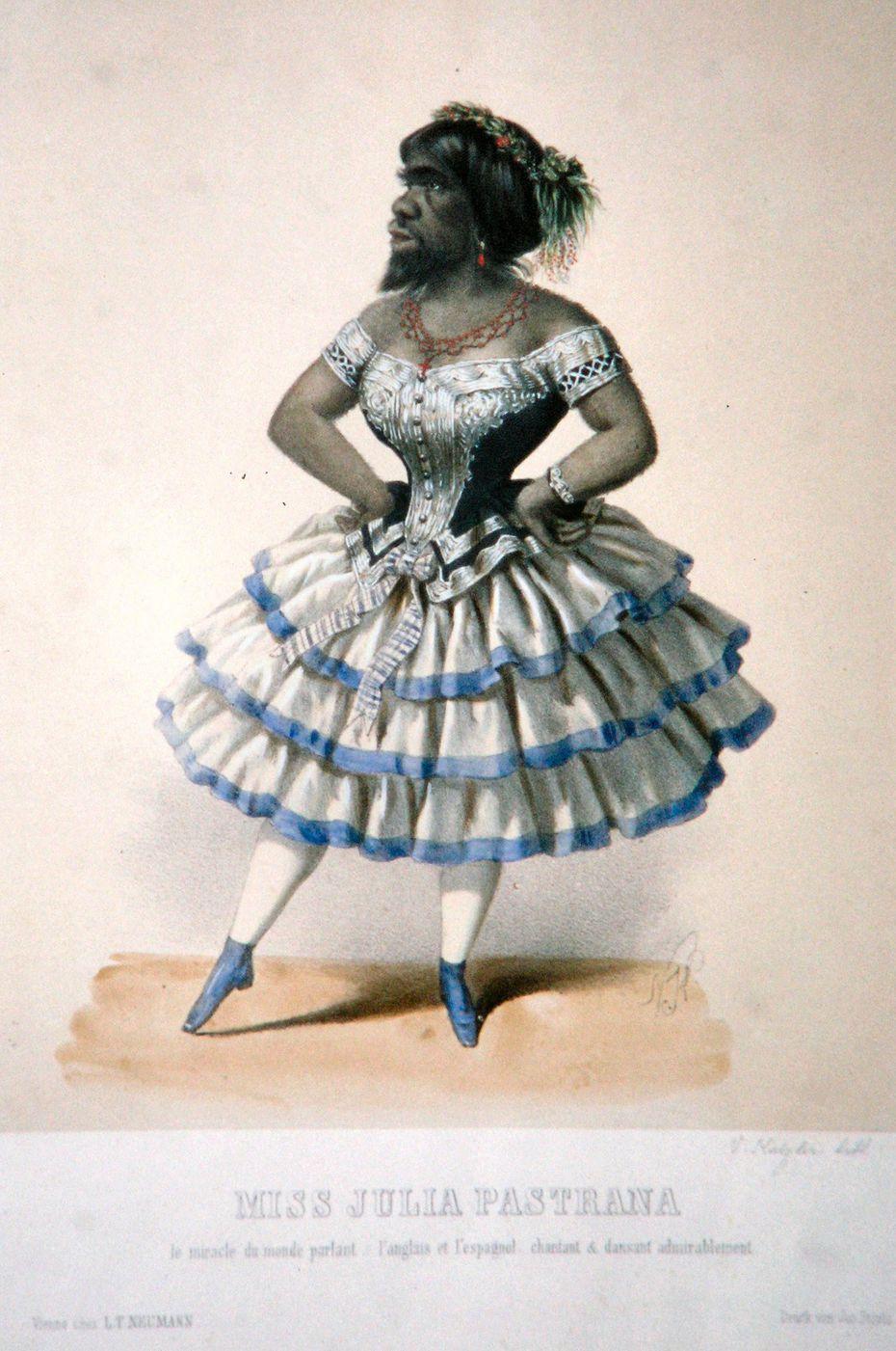 Lithograph of Julia Pastrana, circa 1860.