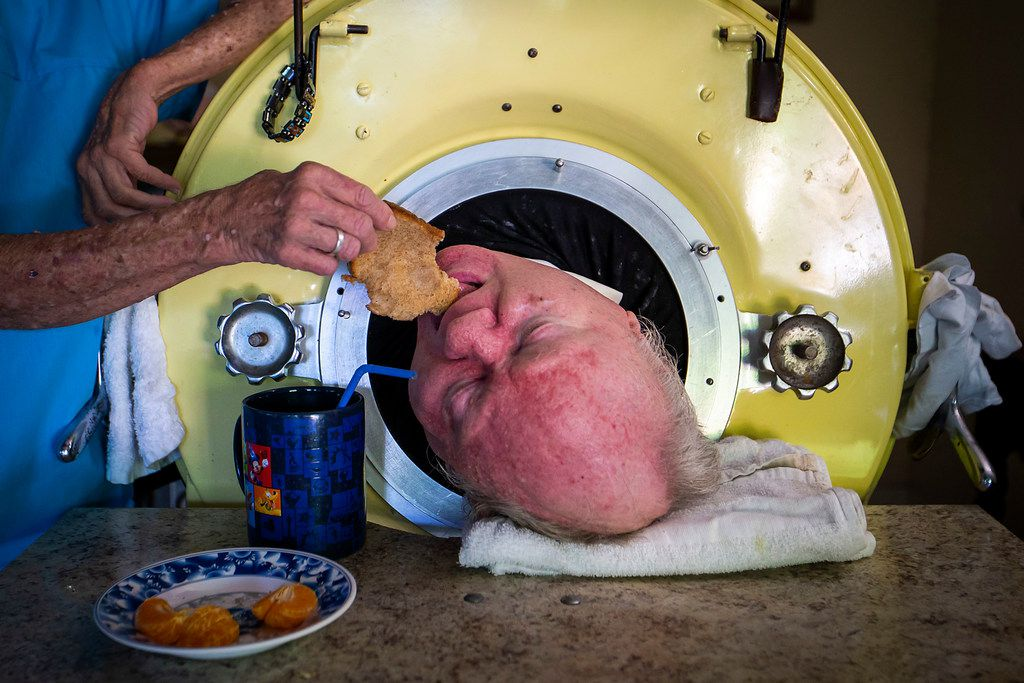 Caregiver and friend Kathryn Gaines feeds toast to Paul Alexander inside his iron lung.