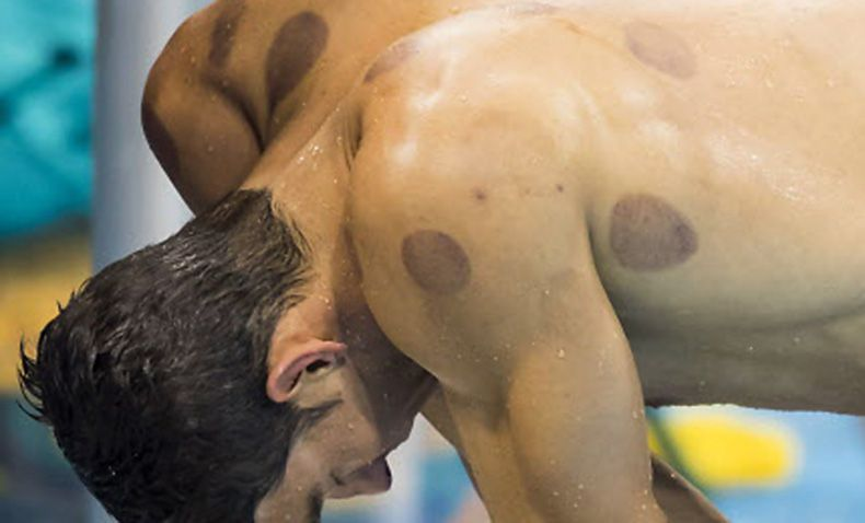 """Michael Phelps catches his breath after swimming the anchor leg of the men's 2X200m freestyle relay final on Aug. 9 at the 2016 Olympic Games in Rio de Janeiro. The large circular bruises on Phelps' back and shoulders are left by """"cupping,"""" an ancient Chinese healing practice."""