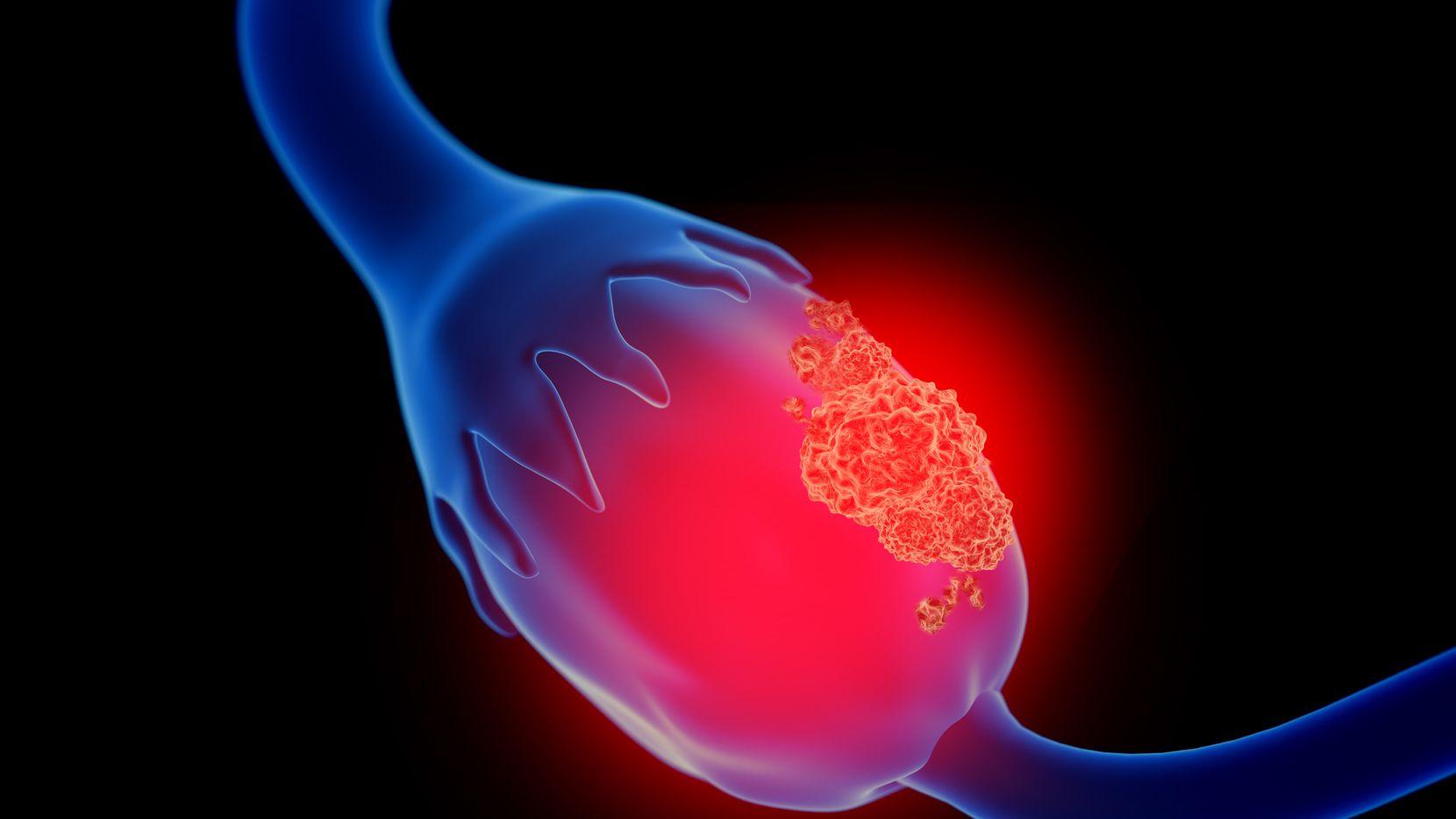 Una ilustración en 3D de un cáncer de ovario. iSTOCK