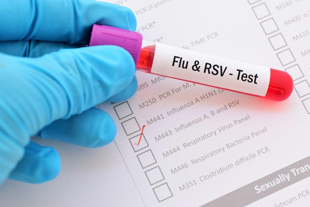 Tubos de laboratorio con virus de la influenza. GETTY IMAGES