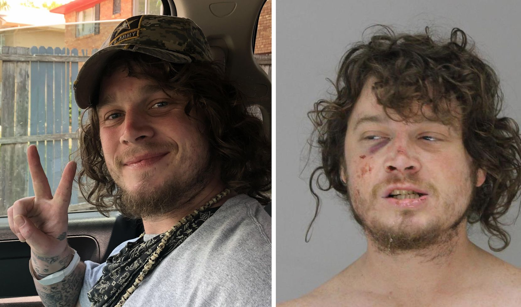 Kyle Vess' mother visited him one week before Dallas paramedic Brad Cox was captured on police body camera footage kicking and punching him. LaNae Vess, his mother, took the photo on the left July 26, 2019. The photo on the right is Vess' mugshot, taken at the Dallas County jail on Aug. 3, 2019.