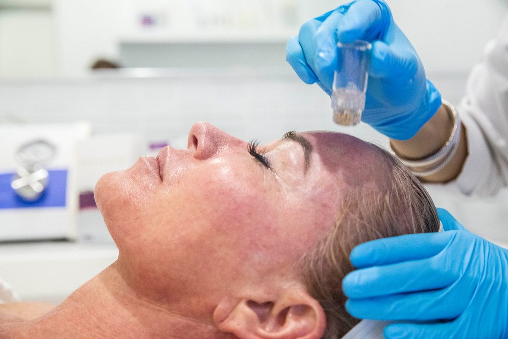 Does AquaGold micro-needling hurt? It doesn't feel good, says Jennifer Bianchi during the treatment. But it is more like a short-lived prick vs. a burning sensation sometimes caused by laser treatments.