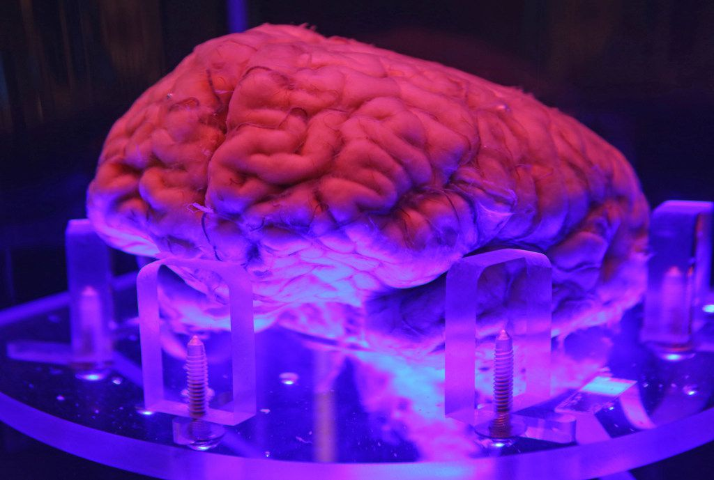 UT Southwestern Medical Center donated a human brain that is on display in a case of diluted formaldehyde.