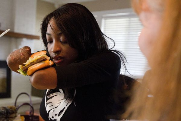 Whitney works on eating a cheeseburger with her amputated arms during occupational therapy. Learning to use prosthetic arms will be a challenge for her later.