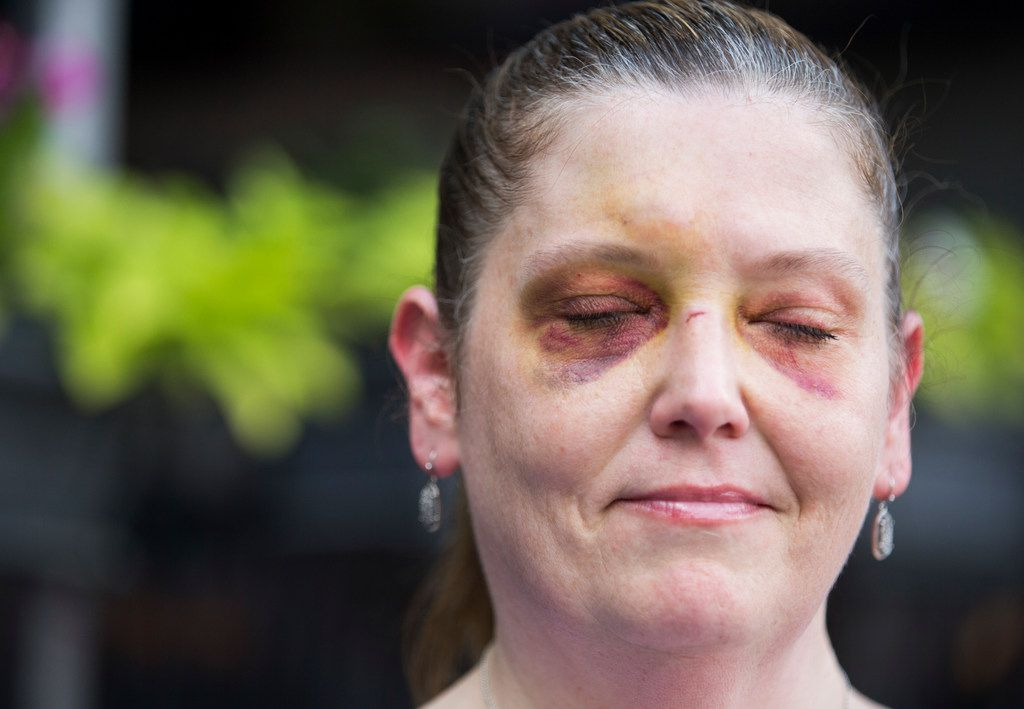 Kelley Mitchum showed her injuries from falling off of a Lime scooter while crossing over trolley tracks.