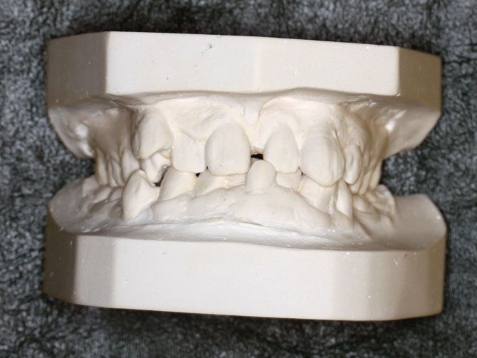 Casts taken of Robina Rayamajhi's teeth show the severe dental problems that have plagued her for years.