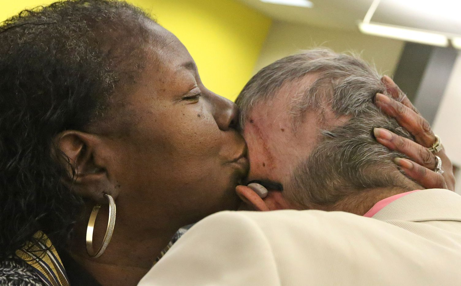 Co-worker Carol Caraway kisses the head of Jeffrey Weiss on the spot where his tumor was removed, during his career tribute party at The Dallas Morning News on Wednesday, March 1, 2017. (Louis DeLuca/The Dallas Morning News)