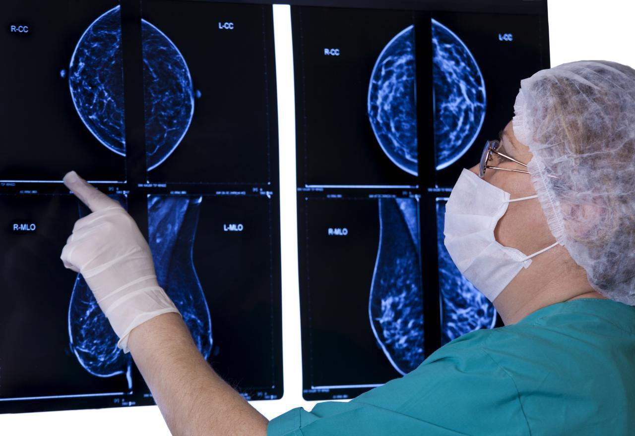 Nuevas directicas de la Sociedad Americana contra el Cáncer recomiendan hacerse una mamografía a los 45 años, en lugar de los 40, como era la recomendación anterior. (iSTOCK/ARCHIVO)