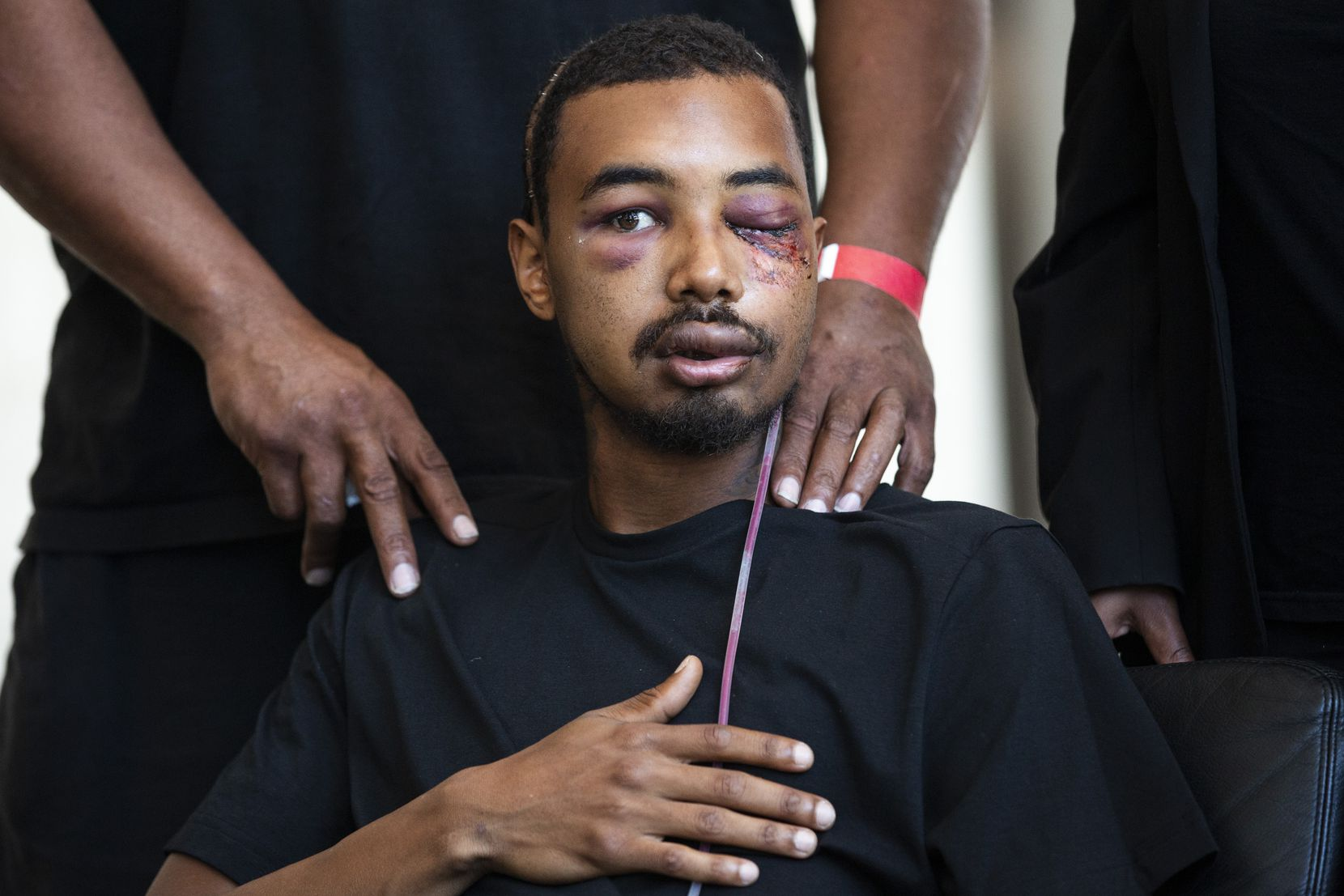 Brandon Saenz, 26, and his legal representation explain how Saenz was hit by a rubber bullet fired by Dallas Police at this past weekendÕs protests during a press conference in downtown Dallas on Wednesday, June 3, 2020. Saenz lost his left eye and has had to have metal plates put in his head. Law enforcement used various crowd control weapons throughout last weekend as hundreds of demonstrators took to the streets to denounce police brutality in response to the recent deaths of George Floyd in Minneapolis and Breonna Taylor in Louisville. (Lynda M. Gonzalez/The Dallas Morning News)
